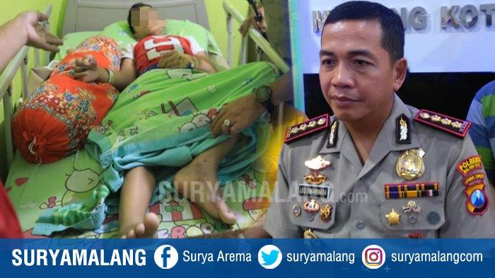 Korban Kekerasan atau Perundungan, MS Terus Menangis Semenjak Jalani Operasi Amputasi Jari