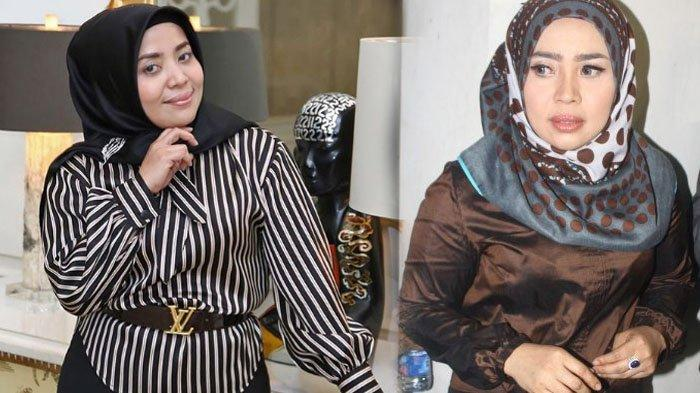 Pantas Saja Fadel Islami 'Tergila-gila' dengan Muzdalifah, Foto-foto Jadul Ini Bukti Cantiknya Dia