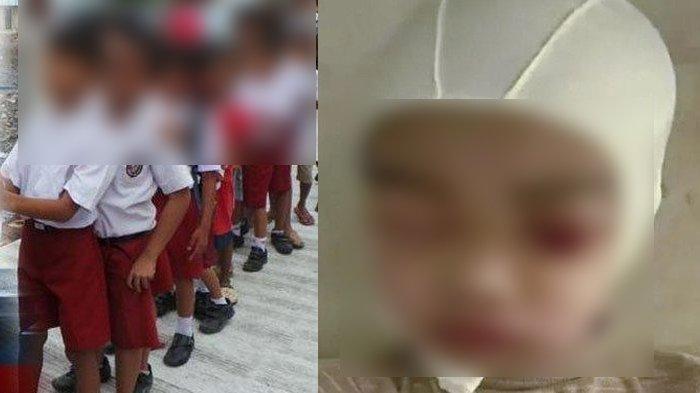 Nasib Guru SD Bikin Hukuman Di Luar Nalar, Jambak Muridnya Sampai Tengkorak & Kulit Kepala Terpisah