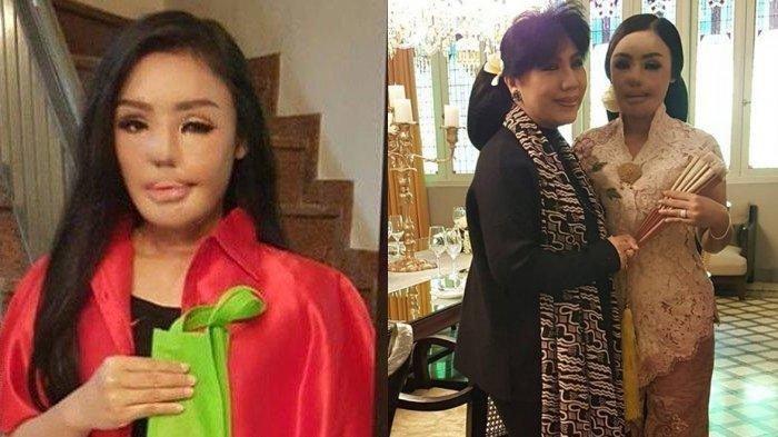 Nasib Kini Lisa Pasien Operasi Face Off Pertama, Penampilan Beda & Pernah Kerja Bareng Anne Avantie