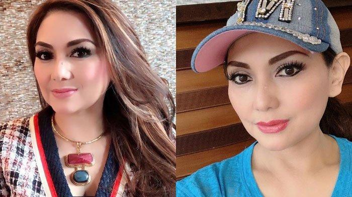 Nia Daniaty Ungkap Penderitaannya Setelah Kecelakaan, Rem Mobil Jepp Blong & Mulut Terbentur Besi