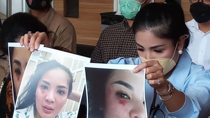 Nindy Ayunda Beberkan Kisah Pilunya, Luka Lebam karena KDRT, Hingga Diselingkuhi sejak Tahun 2015