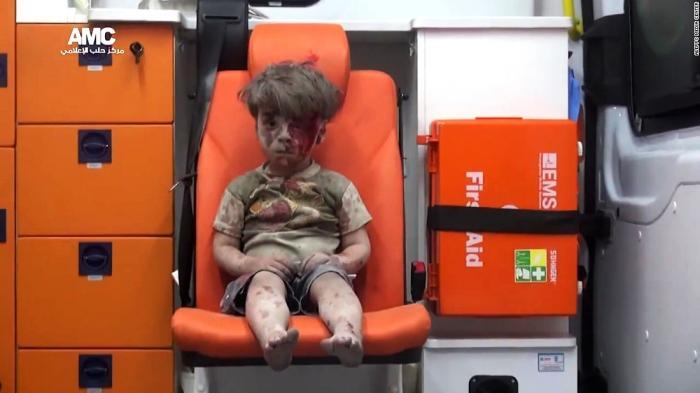 Masih Ingat Foto yang Jadi Simbol Penderitaan Bocah Suriah? Begini Wajahnya Sekarang, Bikin Gemes