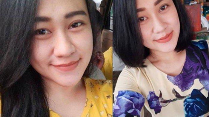 Operasi Plastik Wajah Cantik Perawat Dibakar di Malang, Luka Bakar Eva Sofiana Wijayanti Tak Parah