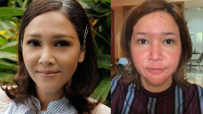 Penyakit Kulit Maia Estianty yang Susah Disembuhkan, Istri Irwan Mussry sampai Bangun Klinik Sendiri