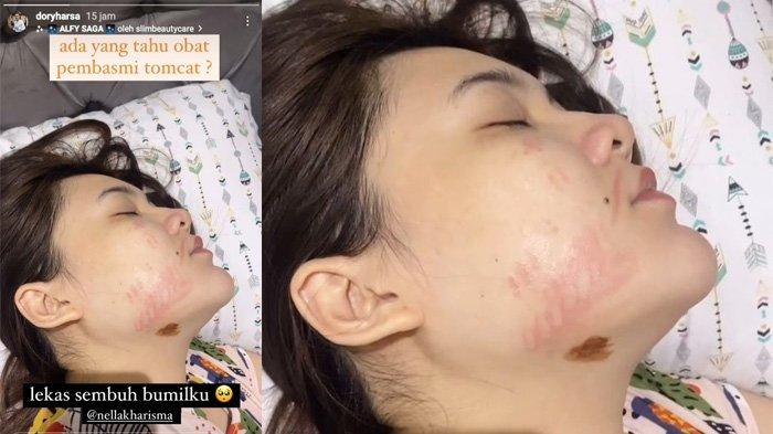 Potret wajah Nella Kharisma setelah digigit tomcat