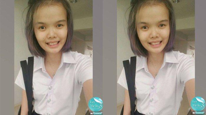 Ingin Cantik Malah Dibully, Wajah Gadis 20 Tahun Setelah Operasi Plastik Ternyata Seperti Aneh