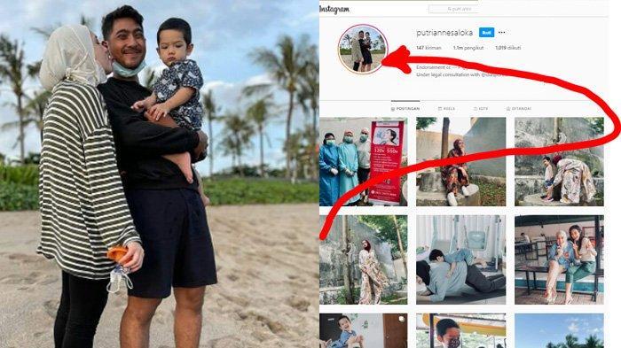 Putri Anne Syok Dihujat Gara-gara Ganti Foto Profil Bareng Suami, Nama Amanda Manopo Diseret-seret