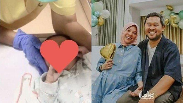Dokter Bocorkan Kondisi Bayi Rachel Maryam, Ini Foto Lucunya Sudah Tidak Penuh Noda & Lapisan Putih