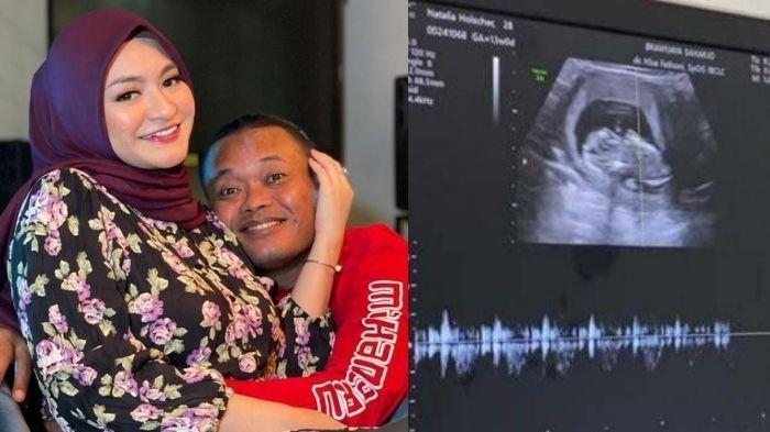 Sule Syok Lihat Kondisi Kandungan Sang Istri, Ayah Rizky Langsung Keluhkan Sifat Nathalie Holscher