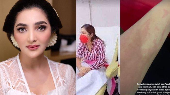 Tubuh Ashanty Penuh Ruam Merah Terasa Sakit & Gatal, Harus Masuk RS Jelang Aurel Hermansyah Menikah