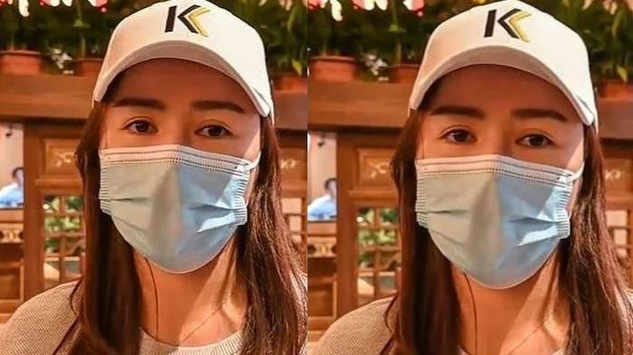 Hasil Mengejutkan Operasi Plastik Wanita Muda, Ingin Hidung Mancung Justru Bagian Telinganya Hilang