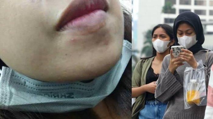 3 Alasan Menurunkan Masker ke Dagu Beresiko Kena Virus Corona, Dokter Jelaskan Teknis Penularannya