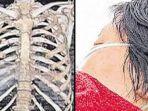 berita-ibu-dipukuli-anaknya-sendiri-hingga-tulang-rusuk-patah_20170309_142220.jpg