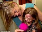 daily-mail-adalia-rose-anak-berusia-enam-tahun-dari-texas-menderita-sindrom-hutchinson-gilford_20181022_140222.jpg