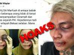hoaks-hoax-ratna-sarumpaet-young-lex-lebam-memar-benjol_20181004_143330.jpg