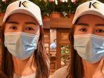 wanita-muda-bernama-zhao-di-china-melakukan-operasi-plastik-hidung-kehilangan-bagian-telinganya.jpg