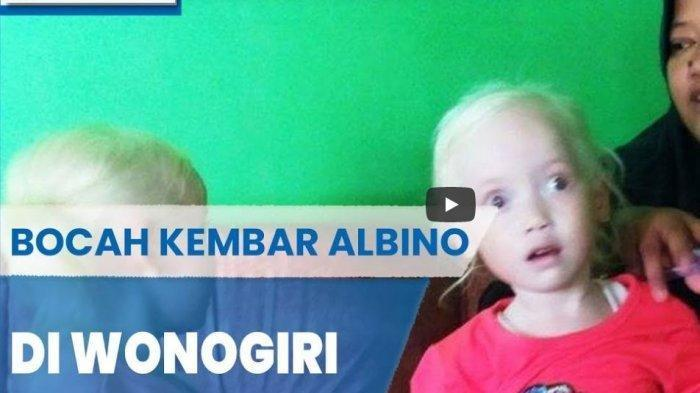 Viral Bocah Kembar Albino Asal Wonogiri, Ibu Kandung: Sewaktu Tinggal di Banten Nggak Seheboh Ini