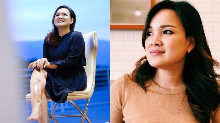 Fakta Laura Lazarus, Pramugari yang Selamat dalam Dua Kecelakaan Pesawat: Bangkit dan Jadi Pebisnis