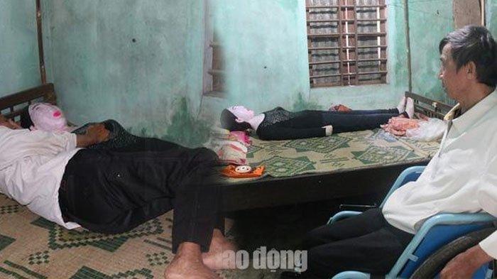 Belum Relakan Kematian Istri, Pria Ini Nekat Ambil Jasad Istri & Jadikan Patung untuk Teman Tidur