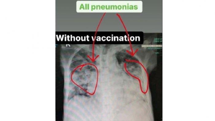 Penjelasan Dokter tentang Viral Foto Rontgen Paru-paru Pasien Covid-19 yang Belum dan Sudah Divaksin
