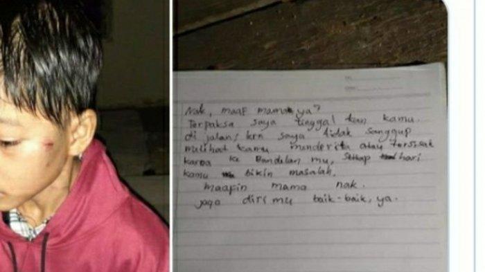 Fakta-fakta Kapolres Pelalawan Asuh Bocah 10 Tahun yang Disiksa dan Dibuang Orangtuanya di Jalan