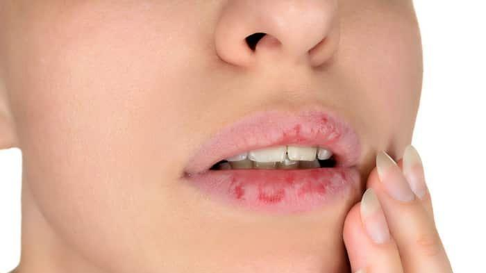 Ilustrasi Bibir Pecah-pecah