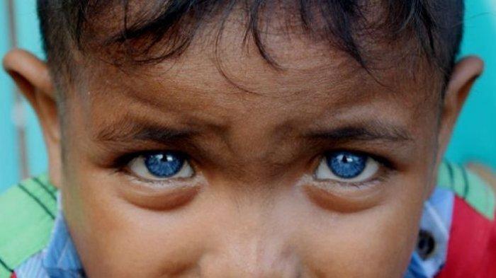 Seorang bocah di Desa Boneatiro, Kecamatan Kapuntori, Kabupaten Buton Sulawesi Tenggara, Fardan Ramadhan (5), memiliki sepasang mata yang berwarna biru di kedua bola matanya.