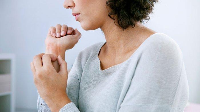 Jangan Sampai Traveling Terganggu Gara-gara Tubuh Alergi, Simak 5 Tips Mengatasinya