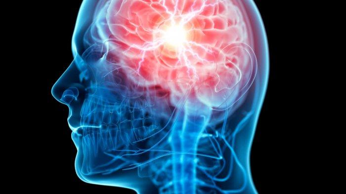 Ilustrasi Neuron