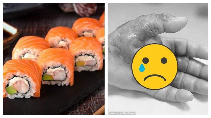 Tangan Pria Asal Korea Selatan Membusuk setelah Makan Sushi, Terpaksa Harus Diamputasi
