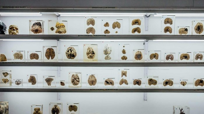 Museum di India Simpan Koleksi Ratusan Otak Manusia, Pengunjung Diizinkan untuk Mengangkatnya