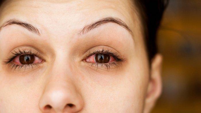Mata memerah karena alergi
