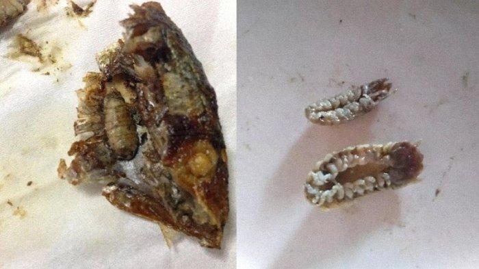Viral di Medsos, Seorang Wanita Temukan Parasit saat Asyik Menyantap Ikan