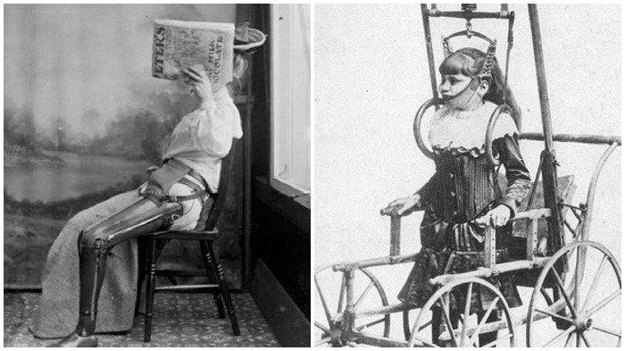 10 Perawatan Medis Aneh yang Populer di Masa Lalu, Termasuk Roti Jamur untuk Bersihkan Luka