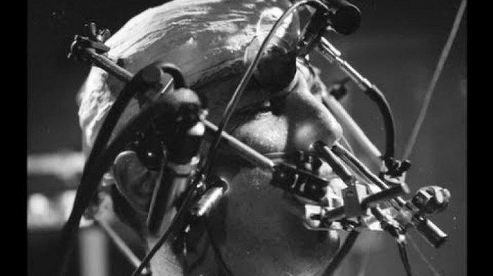Tak Manusiawi! Ini 8 Eksperimen Terjahat yang Pernah Terjadi Pada Manusia, Nomor 5 Paling Sadis