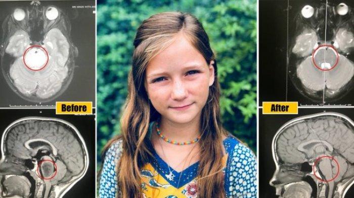 Tumor Otak Langka Gadis Kecil Asal Texas yang 'Tidak Bisa Disembuhkan' Secara Ajaib Menghilang