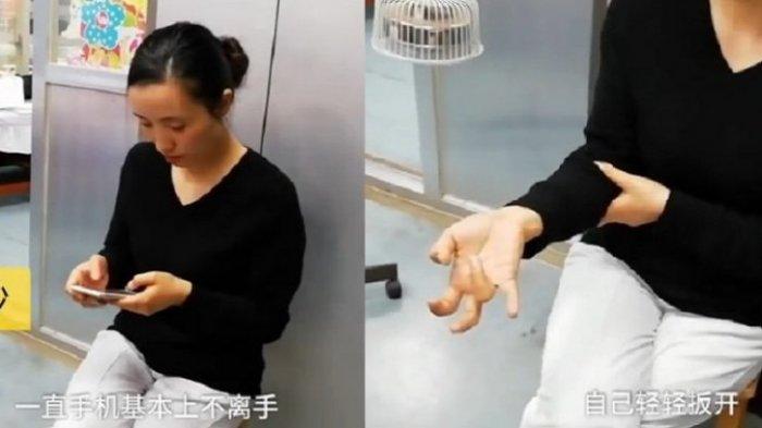 Tangan Wanita Asal Tiongkok Mengalami Hal Aneh Gara-gara Main Ponsel Tanpa Henti Selama Seminggu