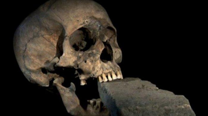 Melihat Koleksi Museum Kematian Unair Surabaya, Siapkan Nyali Sebelum Berkunjung
