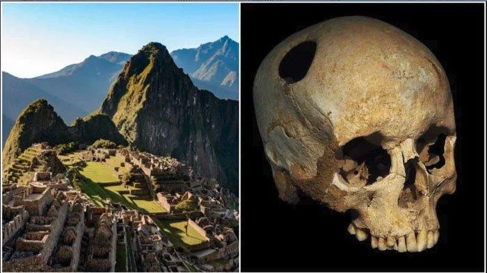 Menguak Metode Operasi Bor Otak Pada Zaman Prasejarah, Pasien Dibiarkan dalam Keadaan Sadar
