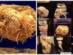 museum-parasitologi-megure-tokyo_20181106_164210.jpg