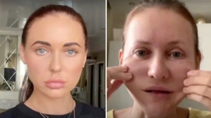 svetlana-sebelum-dan-sesudah-melakukan-perawatan-kecantikan-wajah-menua-10-tahun.jpg