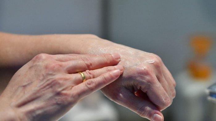 Penggunaan Hand Sanitizer Dapat Sebabkan Kulit Kering, Ini Cara Atasi Agar Kulit Jadi Lembab