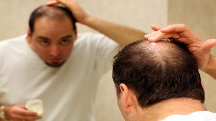 Cara Mudah Atasi Rambut yang Rapuh dan Mudah Rontok