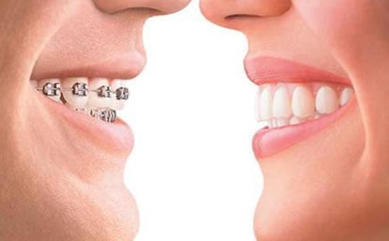 Begini Cara Mencegah Gigi Kuning Setelah Memakai Behel