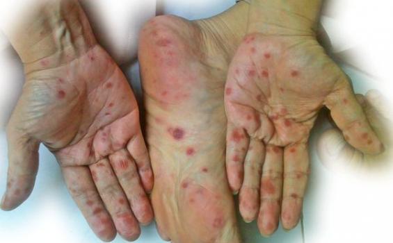 Kiano Terserang Flu Singapura, Apa Itu Flu Singapura? Simak Gejalanya Berikut Ini