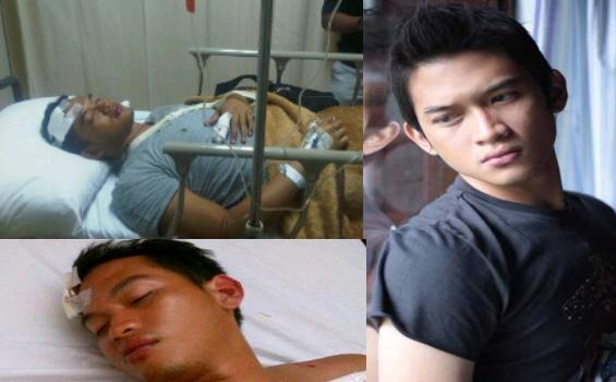 Foto-foto aktor Rezky Aditya tergolek lemah di Rumah Sakit Pondok Indah Jakarta Selatan setelah mengalami kecelakaan pada Sabtu malam (1/9/2012)