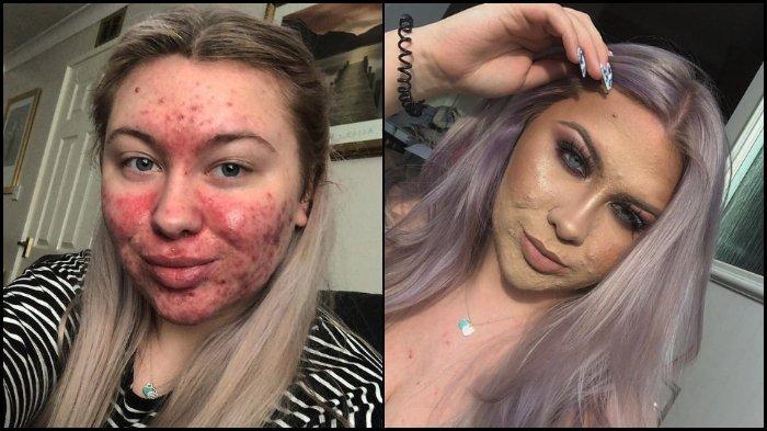 Remaja 19 Tahun Selalu Tutupi Jerawat Parahnya dengan Makeup Tebal, Tak Mau Pacaran karena Takut