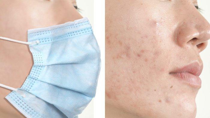 Acne mekanic adalah jerawat yang timbul karena gesekan serta kelembaban yang berlebihan.