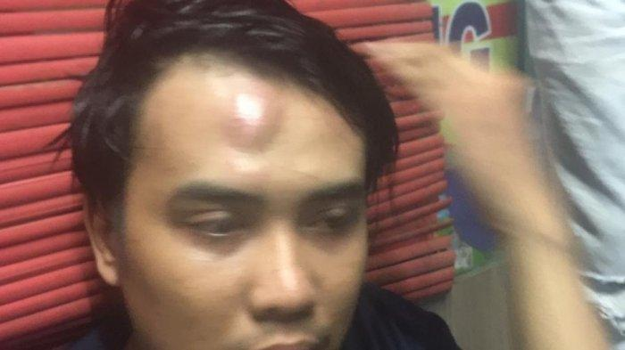 Ogah Bayar Mie Rebus dan Kopi, Dua Pemuda Pukuli Pemilik Warkop di Depok Hingga Babak Belur